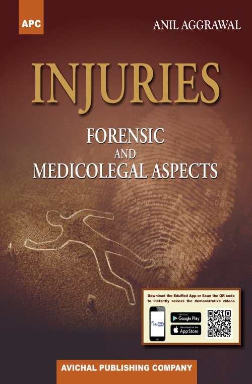 Injuries Forensic and Medicolegal Aspects